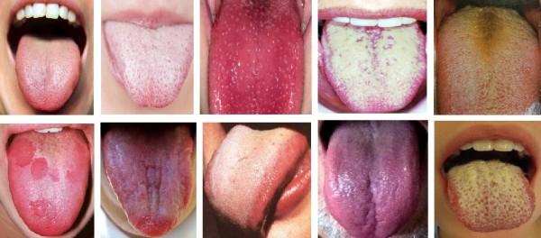 Header-Tongue-Health-e1435088362856